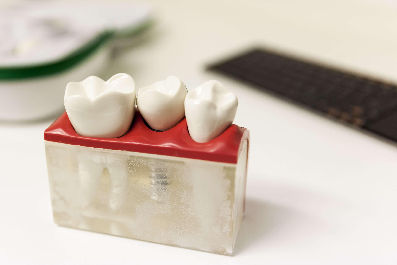 Zähnemodell
